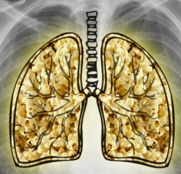 about-diacetyl-popcorn-lung